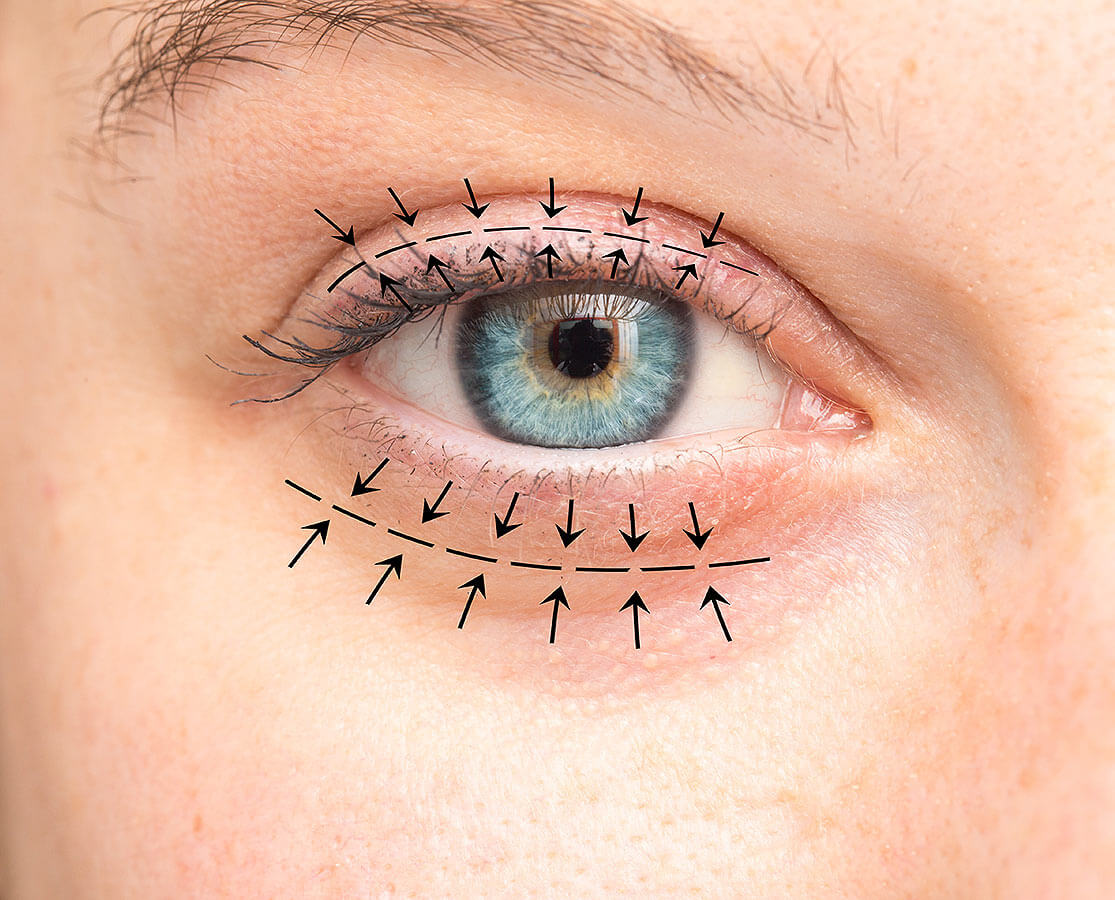 Closeup of an eye with arrows representing Oculoplastic Surgery