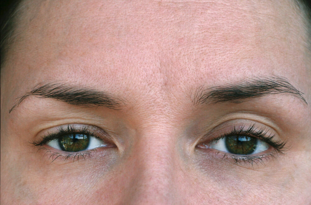 Close up of woman's eyes with ptosis